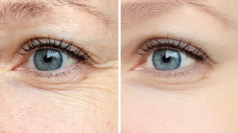 طرق طبيعية تخلصك من تجاعيد العين