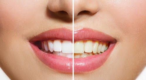 علاجات منزلية لأسنان ناصعة البياض
